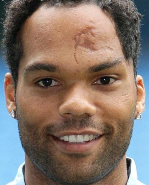Shit Lookalikes Joleon Lescott S Forehead And Half Of The