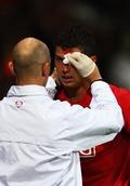 Ronaldo%20blood.jpg