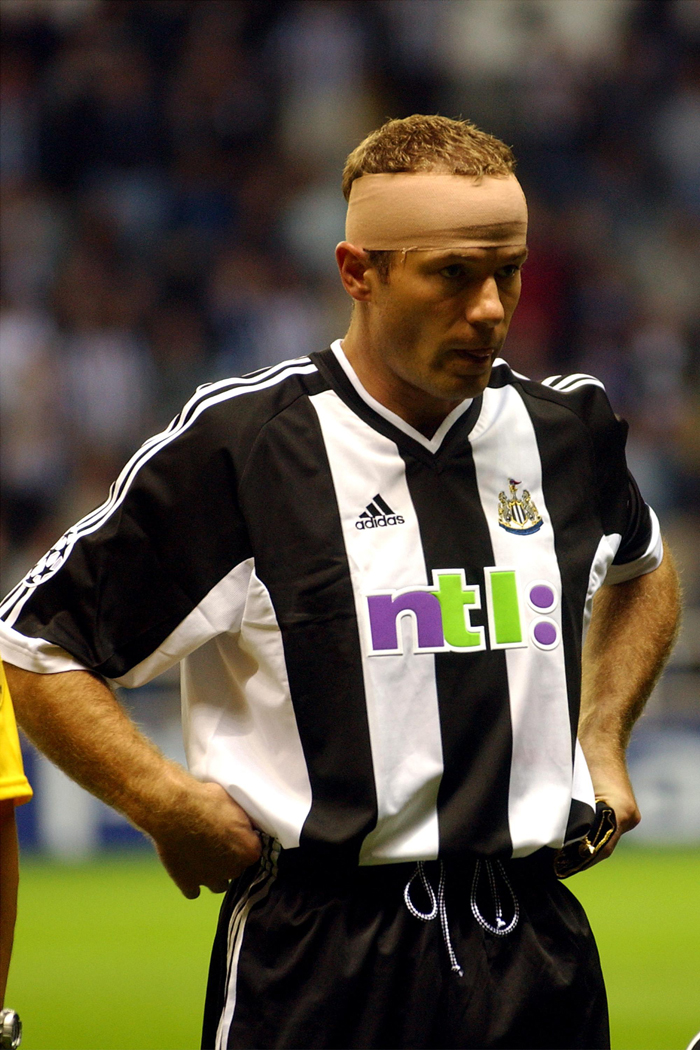 pa-photos_t_footballers-bandaged-heads-pictures-pies-2109i