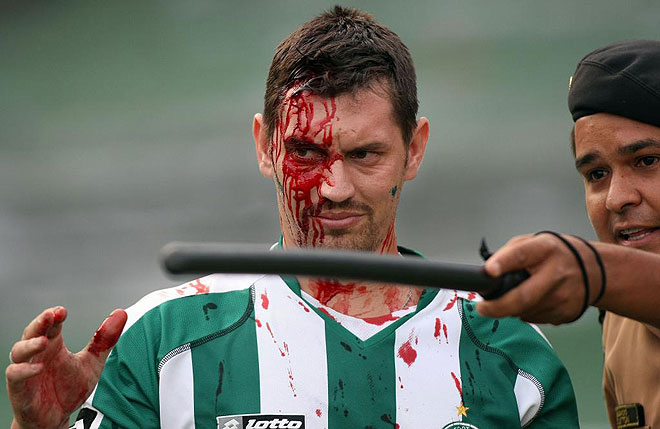 Brazil Nuts Enraged Coritiba Fans Attack Officials And