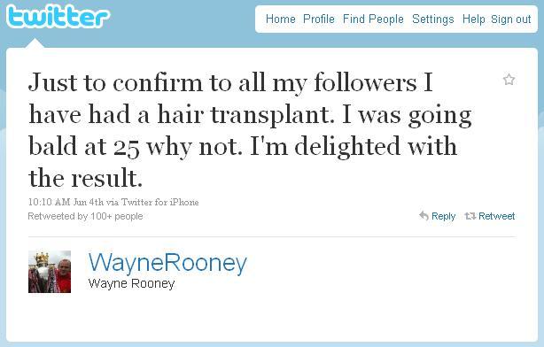 Уйэн Руни твиттер пересадка волос
