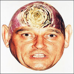 Graham Taylor turnip head