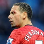 Rio Ferdinand Busted Open By 2p Coin Thrown By Man City Fan (Photos & Video)