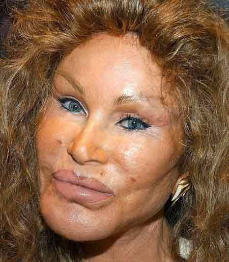 jocelyn-wildenstein-horror