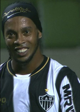 ronaldinho-teeth-fixed