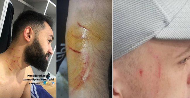 Turkish prosecutors launch investigation into footballer accused of alleged razor attack